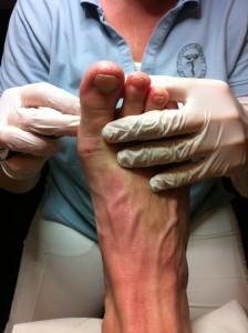 Fodterapeut Malene Schmøde er i gang med fodbehandling, så mine fødder kan blive ved med at være glade fødder :-)